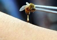 蜜蜂蛰了怎么消肿止痛 蜜蜂蛰消肿的最快方法