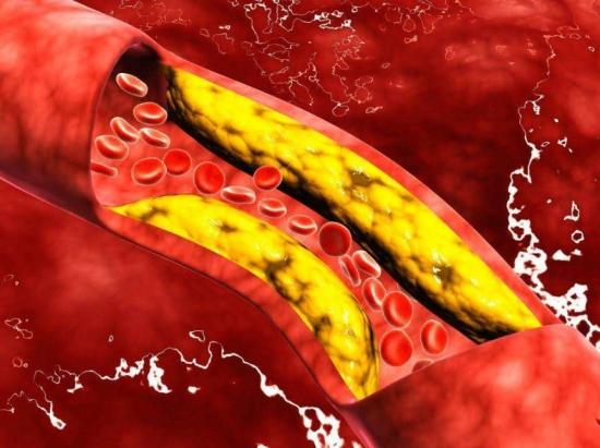 清理血管的果蔬有哪些:多食以下果蔬有益于清理血管